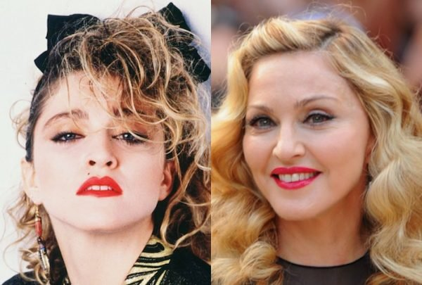 Madonna-Before-and-After-Plastic-Surgery